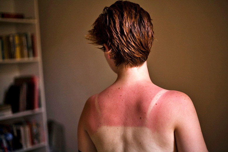 Sunburn normally takes eight to 10 hours to appear © Kevin O'Mara - Flickr Creative Commons